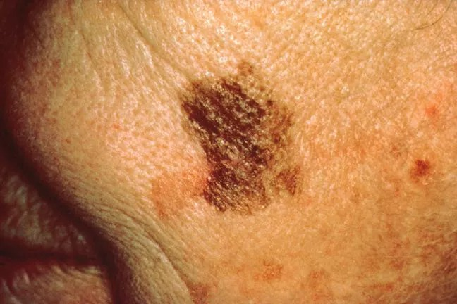How to recognize a 'bad mole' to see a doctor promptly